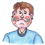 Rimedio per acne